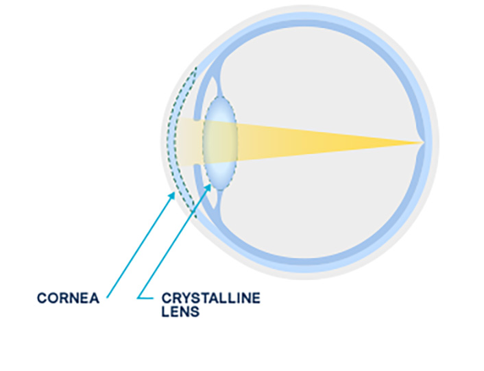 Diagram of a normal lens versus a cloudy lens from a cataract