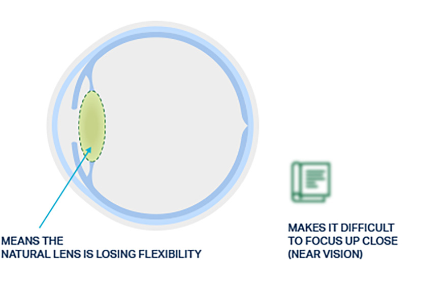 Visual of a natural lens with presbyopia