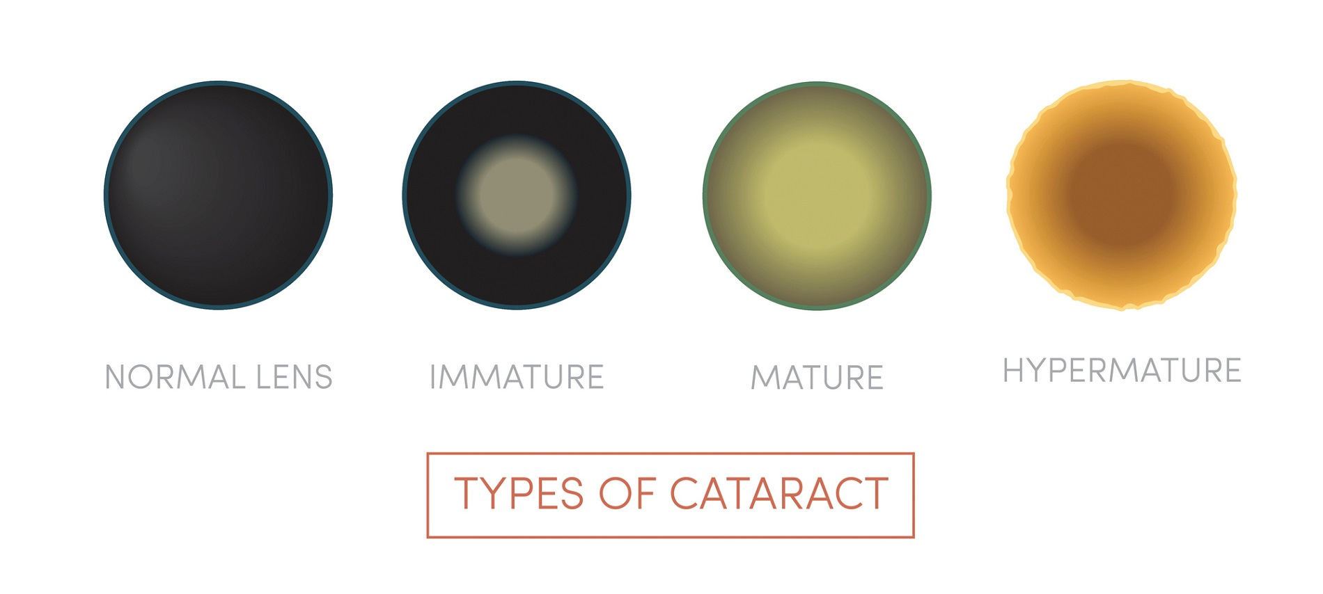 Types of cataract: normal lens, immature, mature, hypermature